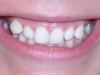 Glendale AZ Braces Othodontics Before