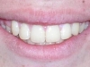 Glendale Overbite Orthodontics After