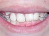 Glendale Overbite Orthodontics Before