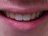 Misaligned Teeth Orthodontic Braces North Phoenix After