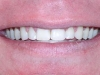 Misaligned Teeth Orthodontic Dentist Braces After