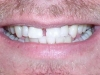 Misaligned Teeth Orthodontic Dentist Braces Before