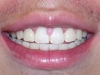 North Phoenix Overbite Correction Orthodontics After