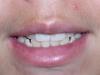 North Phoenix Overbite Correction Orthodontics Before