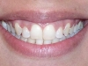 Orthodontic Disorder Cosmetic Dentist After