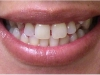 Orthodontic Disorder Cosmetic Dentist Before