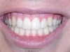 Peoria Arizona Cosmetic Dentist Orthodontics After