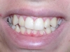 Peoria Arizona Cosmetic Dentist Orthodontics Before