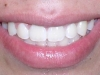 Underbite Orthodontic Procedure Peoria AZ After