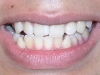 Underbite Orthodontic Procedure Peoria AZ Before