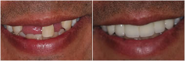 Glendale Cosmetic Dental Makeover By Aesthetic Dentistry of Arrowhead