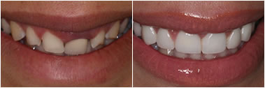 Cosmetic Dentistry in Glendale Can Help Transform Your Smile