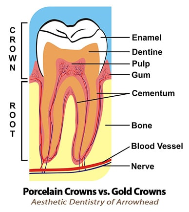 Cosmetic Dental Porcelain Crowns vs. Gold Crowns in Peoria