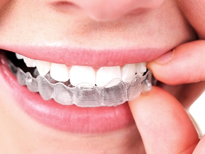 Invisible Invisalign Braces Glendale with Aesthetic Dentistry of Arrowhead