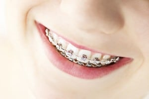 Glendale AZ Orthodontic Options Available With Aesthetic Dentistry of Arrowhead