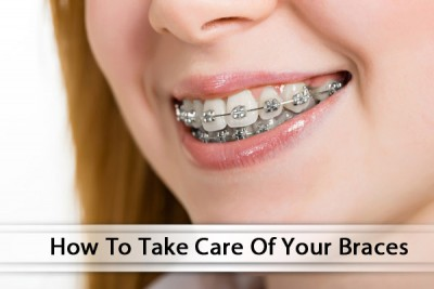 How To Properly Clean Your Glendale Braces