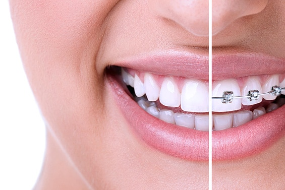 Invisalign orthodontic dentist in Glendale, Arizona