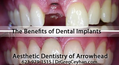 The Benefits of Peoria Dental Implants With Dr. Greg Ceyhan