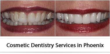 Expert Cosmetic Dentistry Services in Phoenix, Arizona