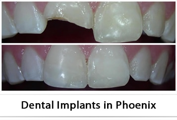 Services for Dental Bonding in Phoenix, AZ