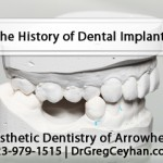 The History of Dental Implants in North Phoenix
