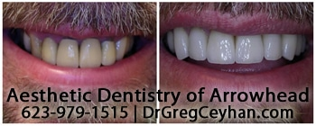 Top 5 Peoria AZ Cosmetic Dentistry Procedures
