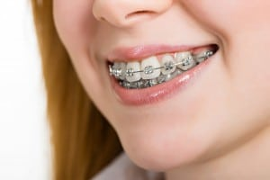 Importance of Braces