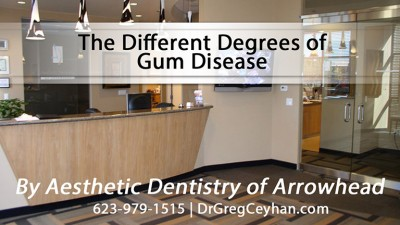 The Different Degrees of Gum Disease