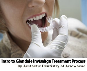 5 Step Guide To Invisalign Treatment Process in Glendale
