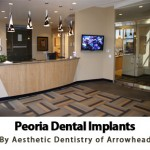 Expert Dental Implant Services by Aesthetic Dentistry in Peoria, AZ