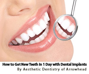 How to Get New Teeth in 1 Day with Glendale AZ Dental Implants