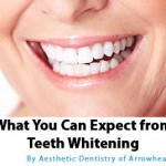 What You Can Expect From Teeth Whitening