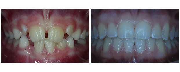 Before & After after procedure by Dr. Ceyhan from Aesthetic Dentistry of Arrowhead