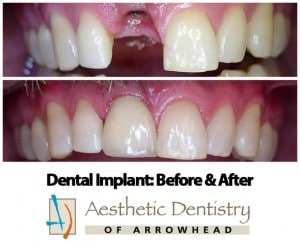 Tooth implant procedure glendale az