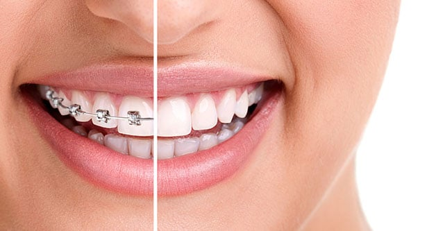 The different types of Glendale braces offered with Dr. Greg Ceyhan