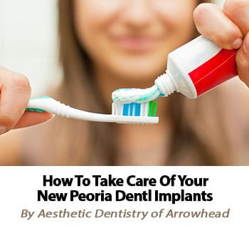Find out how to properly care for your new Peoria dental implants!