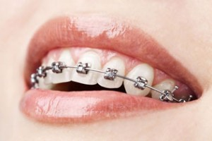 I Got Phoenix Braces- Now What?