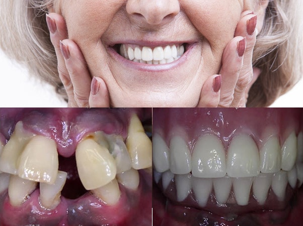 Get a full set of Teeth in a Day™ with a dental implant prosthesis in Glendale, AZ