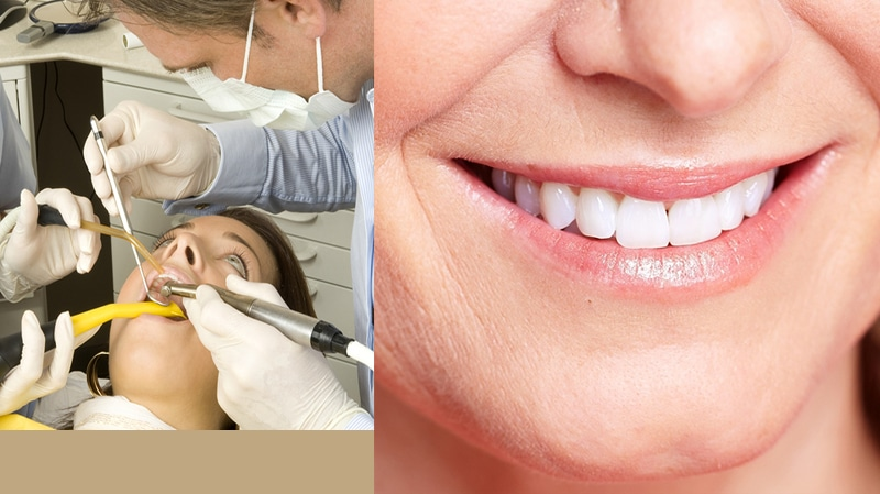 Professional Dental Cleanings in Glendale