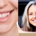 Teeth Whitening Glendale, AZ Home in Office Treatment