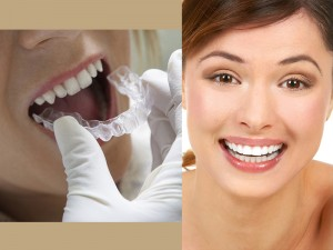 Home Whitening Kits for teeth in Glendale