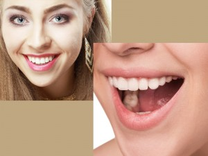 Zoom! Whitening In-Office teeth whitening services