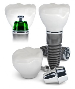 How Listening to Your North Phoenix Dentist Can Help You Spot the Early Signs of Dental Implant Problems
