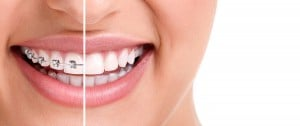 Common Reasons Your Peoria Braces are Falling off!