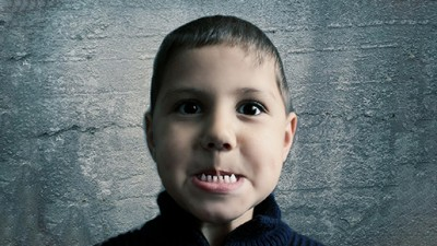 The Secret of Helping Your Kids to Overcome the Fear of your Peoria Dentist