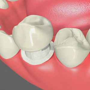 What You Should Know About Tooth Decay Under Your Glendale Dental Implant