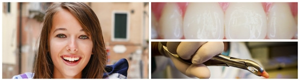 The Dental Implant Boom
