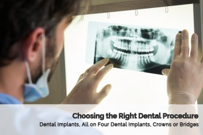 How To Choose The Right Dental Procedure in Glendale Arizona