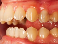 The importance of Regular Glendale Dental Visits & Cleanings