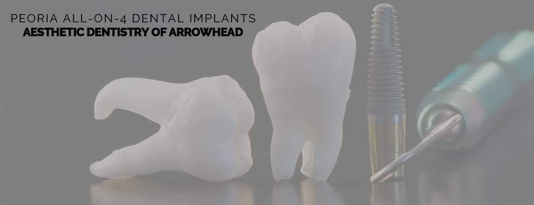 All-on-4 Dental Implants for Peoria Residents